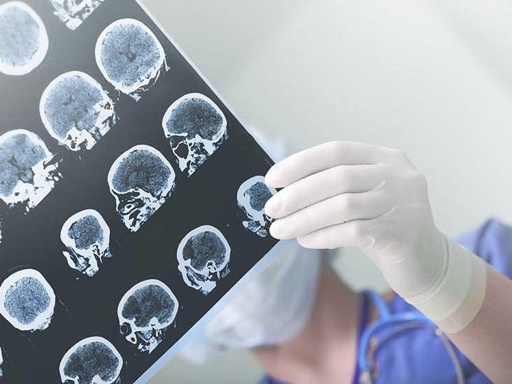 astronauts brains