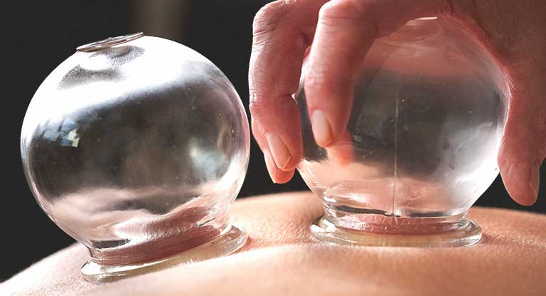Cupping Therapy Is the Latest Fad at the Rio Olympics