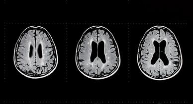 Multiple Sclerosis Patient