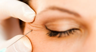 Botox for Crow's Feet: Side Effects, Cost, and Recovery