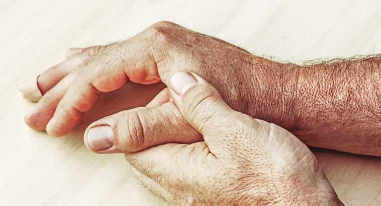 Rheumatoid Arthritis Deaths Have Decreased