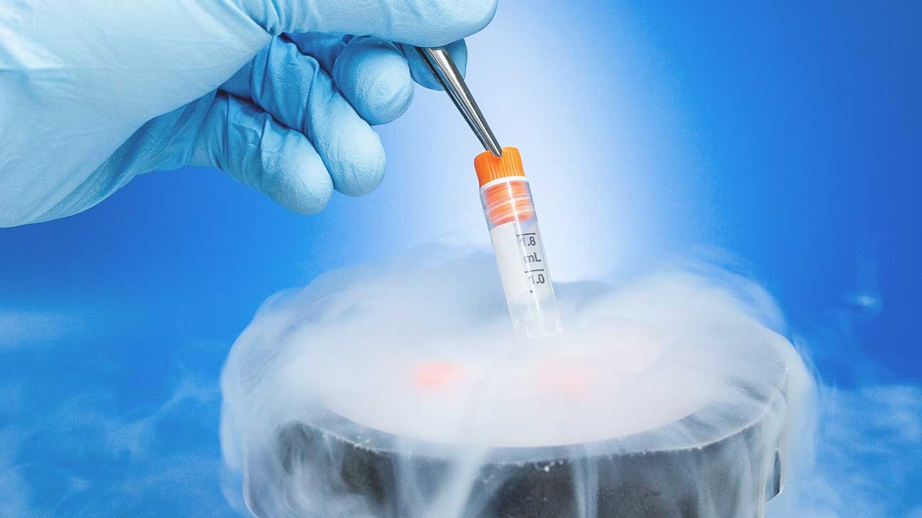 ra patients freezing eggs