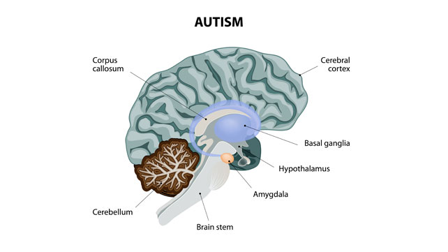 autism savant syndrome essay Savant syndrome research paper  research into autism research paper about diagnostic assessment for high school ielts essay on writing toronto essay savant.