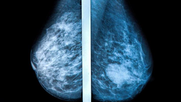 Mammogram Device
