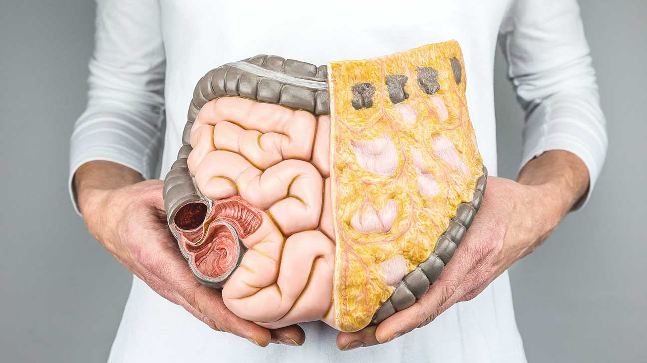 lynch syndrome and colorectal cancer
