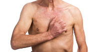 Breast Cancer Awareness Ignores At-Risk Men