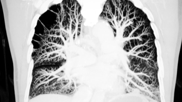 COPD Imaging
