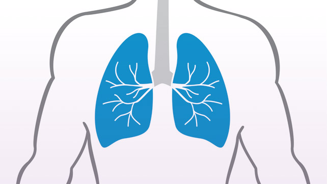 COPD Patients