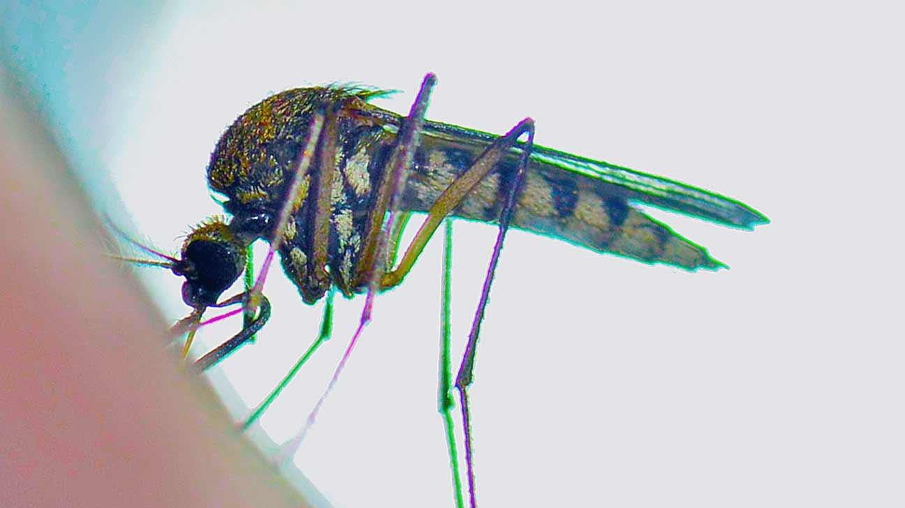zika and microcephaly