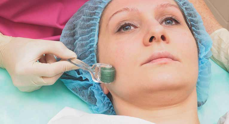 Microneedling: The Latest Craze in Skin Care
