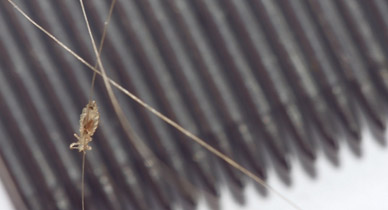 7 Common Lice Symptoms Do You Have Lice