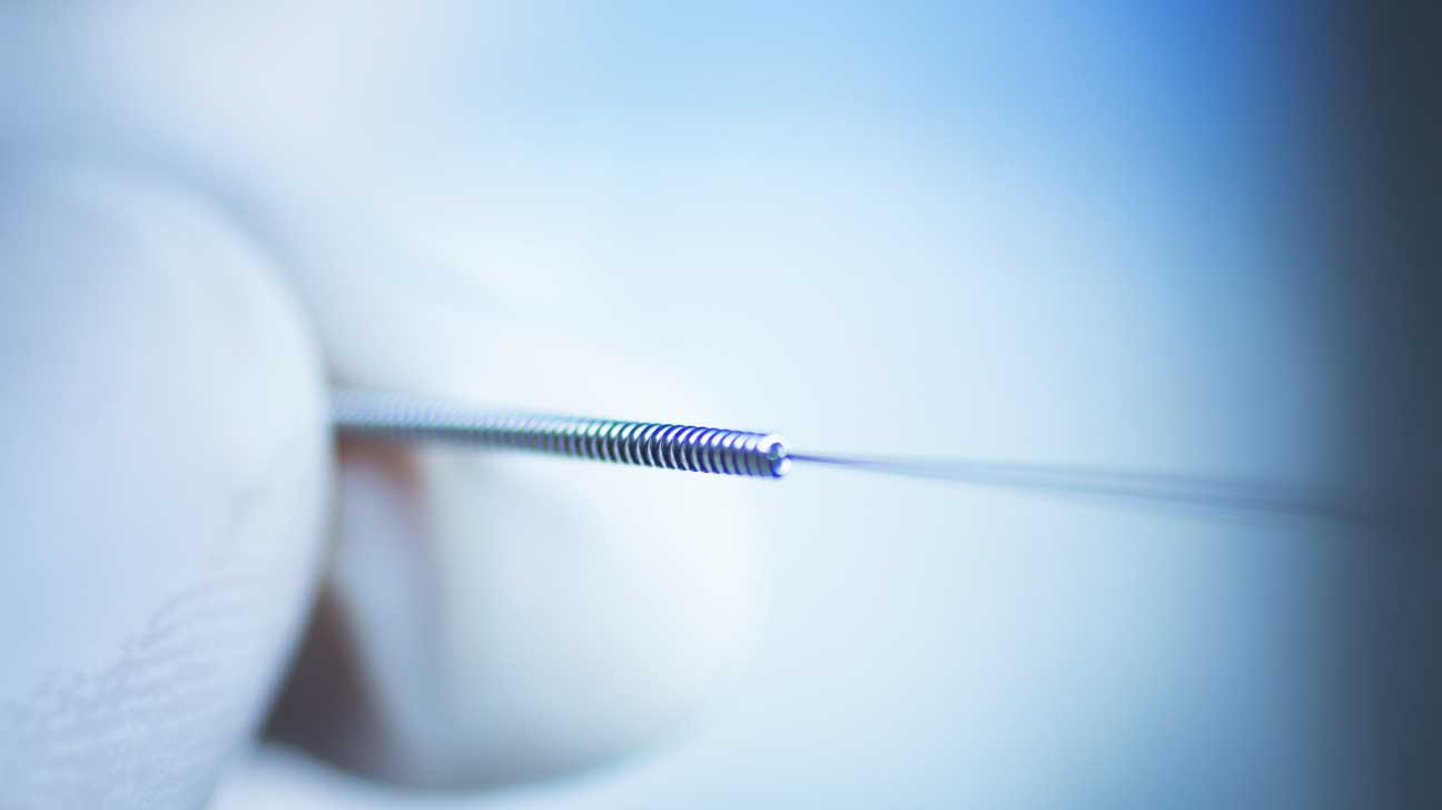 Acupuncturists and Physical Therapists Declare War Over 'Dry Needling'