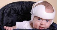 Babies Positional Skull Flattening Not Benefit Corrective Helmets
