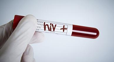 As HIV Devastates