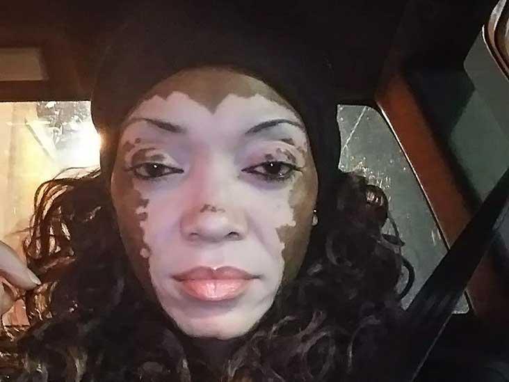 Vitiligo Awareness Campaign By Woman