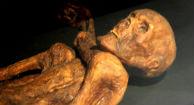 Ancient Mummies Heart Disease