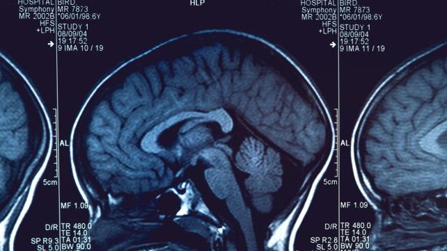 Alzheimers Status