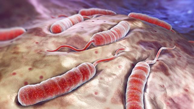 Cholera Risk