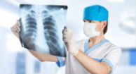 Medicare Will Pay for Lung Cancer Screenings in Long-term Smokers