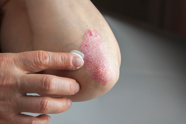 Health Check: How Much Is Psoriasis Affecting Your Life 2