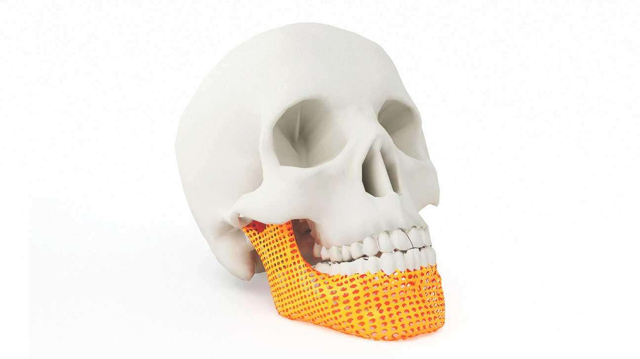 3-d printed bones