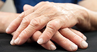 NSAIDs Relieve Arthritis Pain