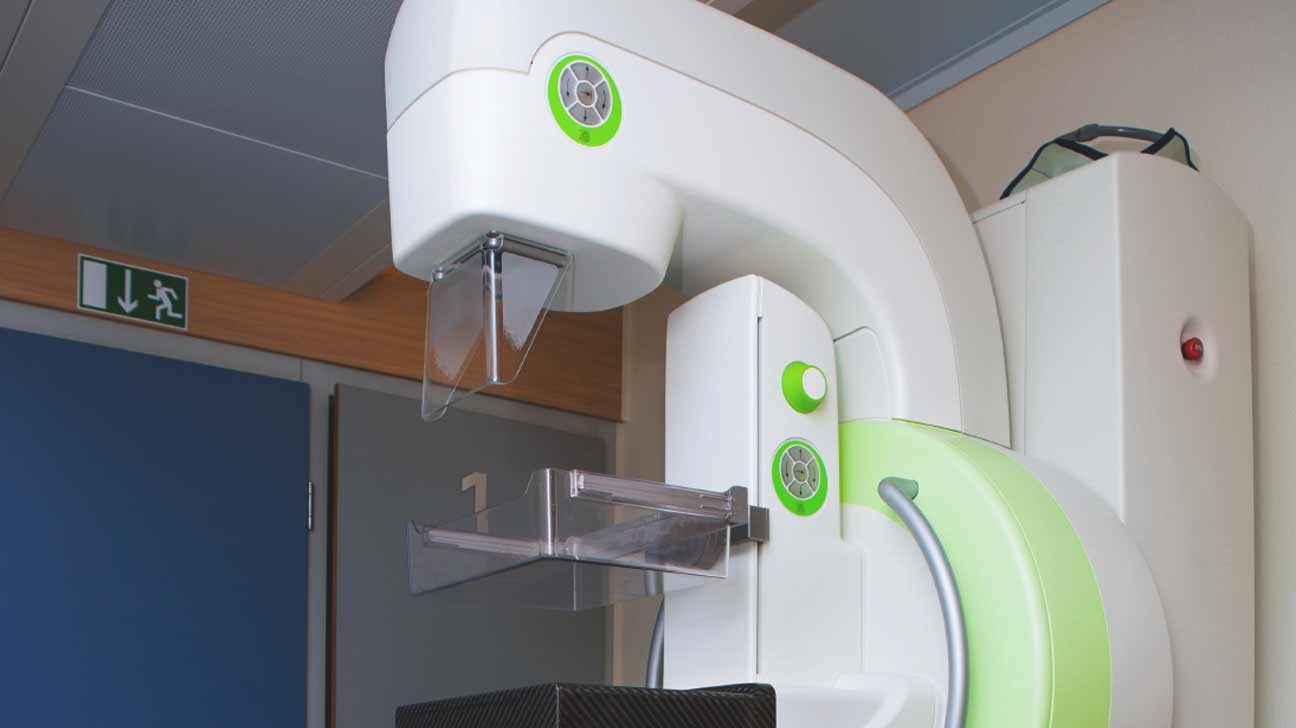 mammogram guideline recommendations