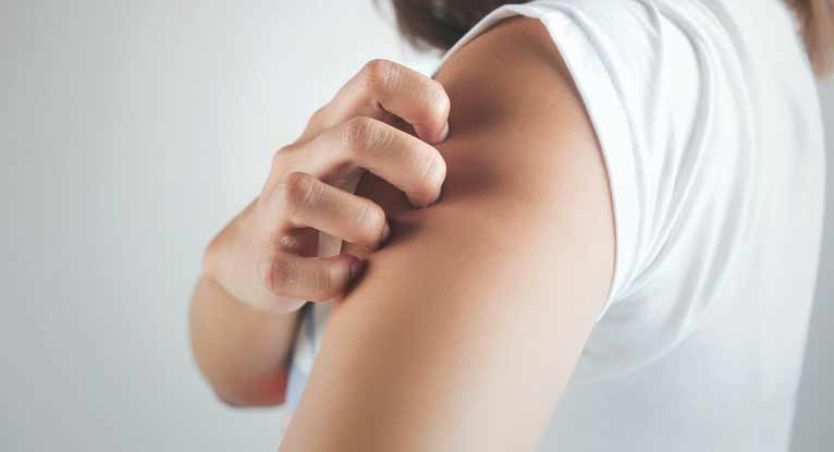 What Causes Psoriasis and Is It Contagious?