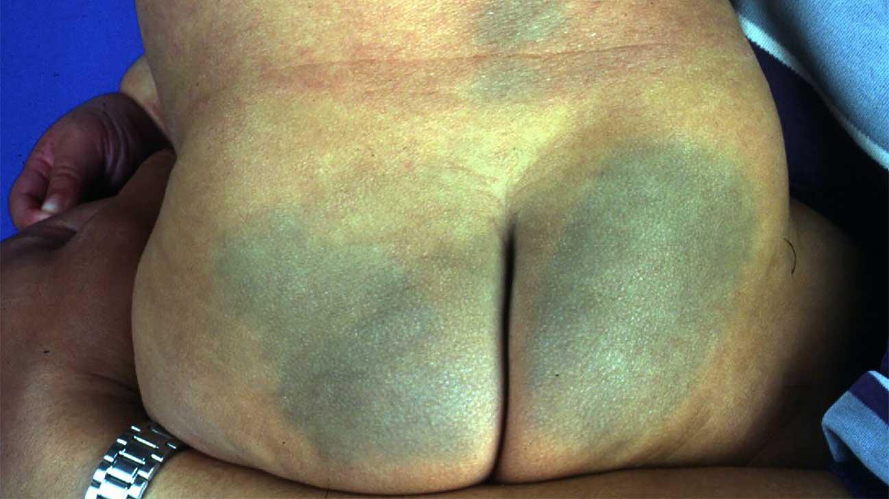 Purple bump on penis — 2
