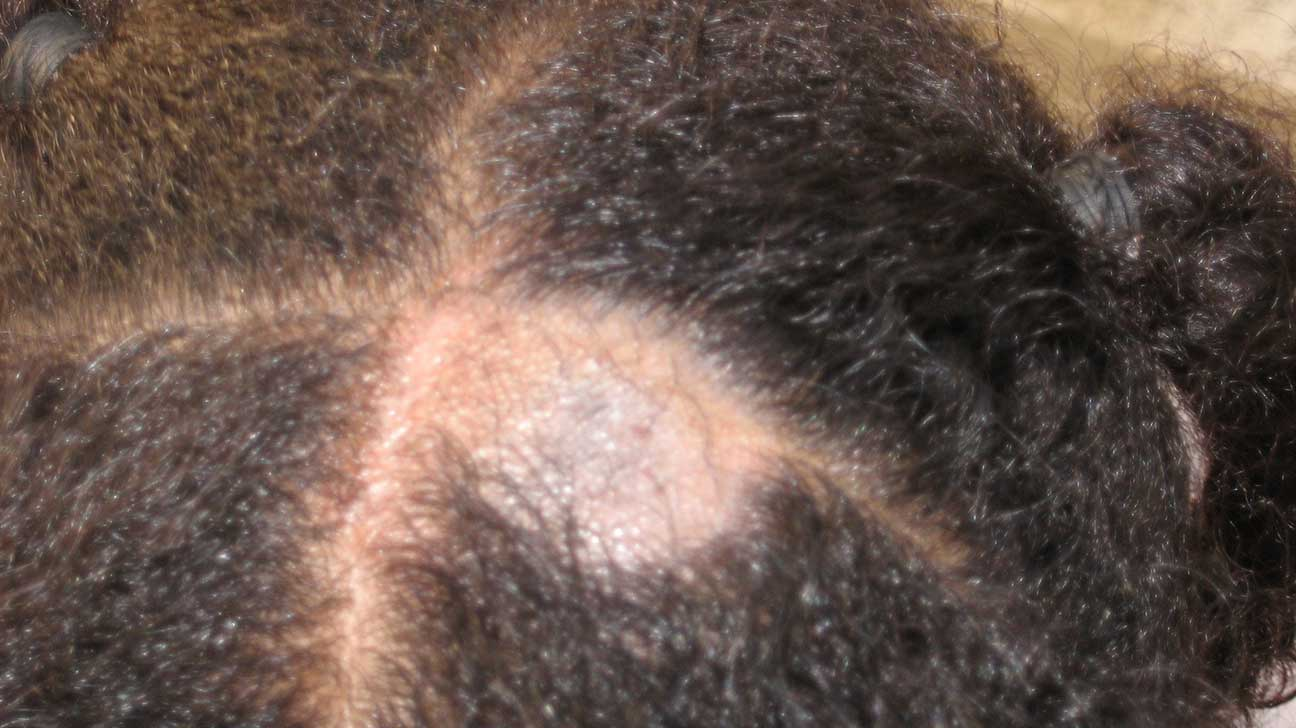Scalp Eczema Natural Treatment