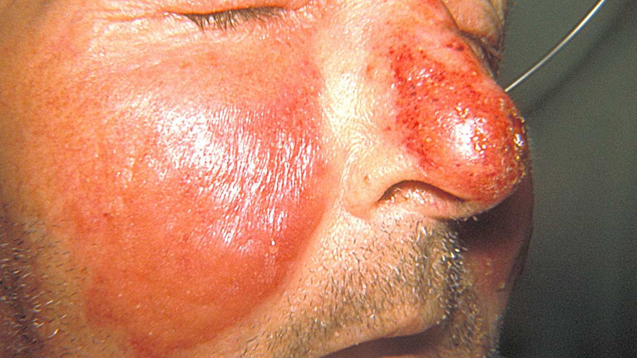 Facial skin blisters foto 792