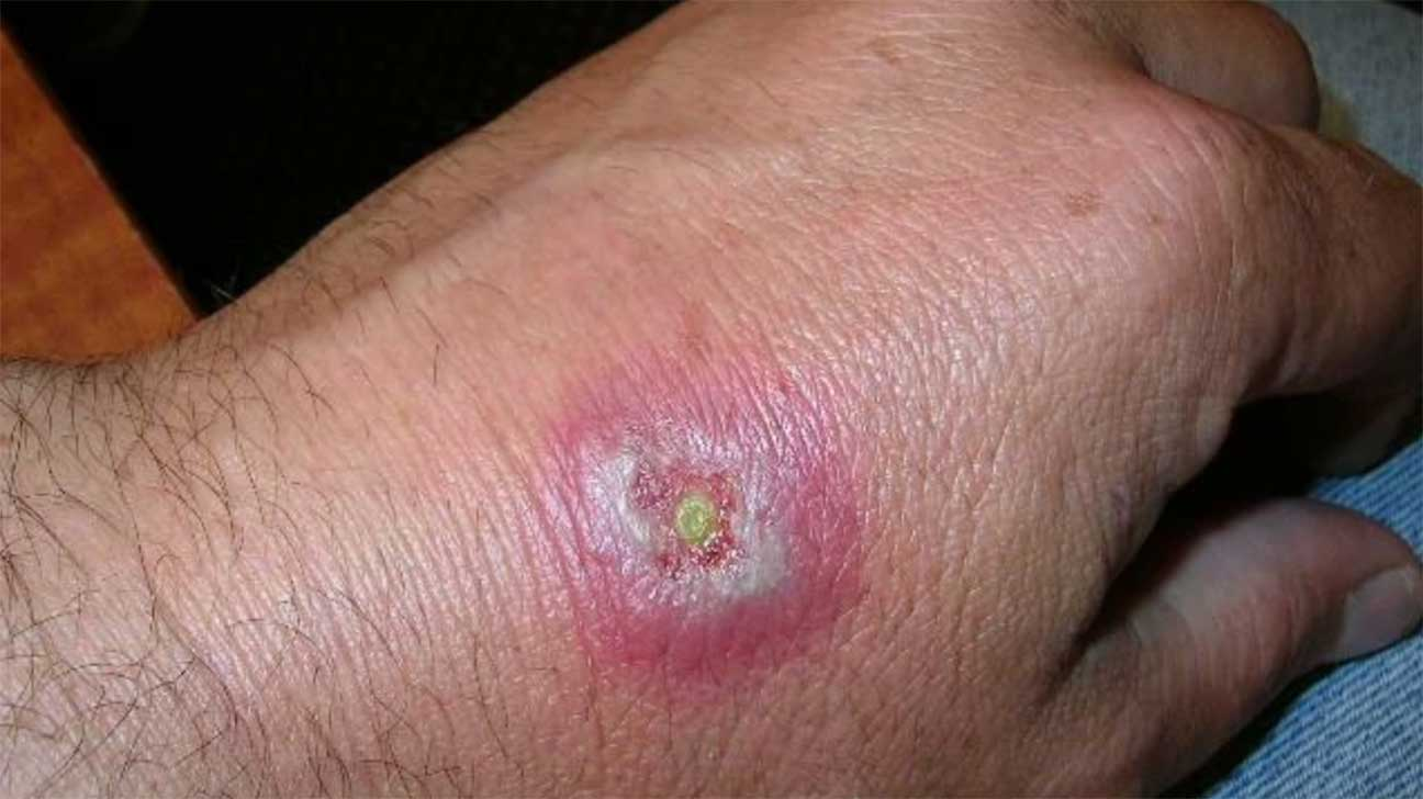 Small Bug Bites On Hand