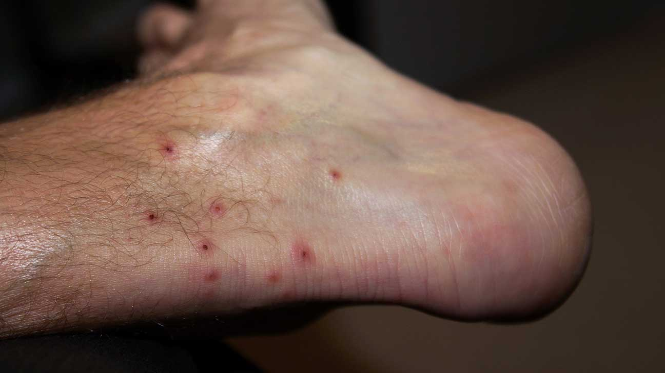 Bites And Stings Pictures Causes And Symptoms