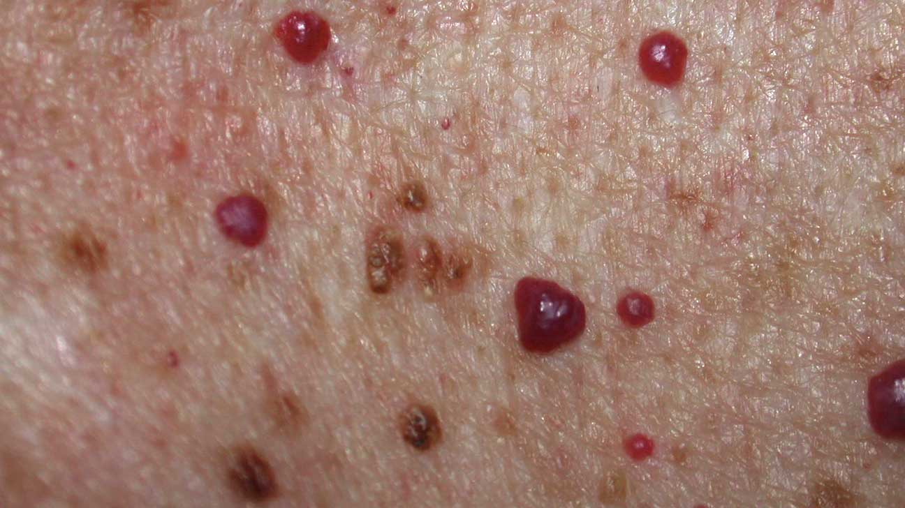 spots all over face neck and chest