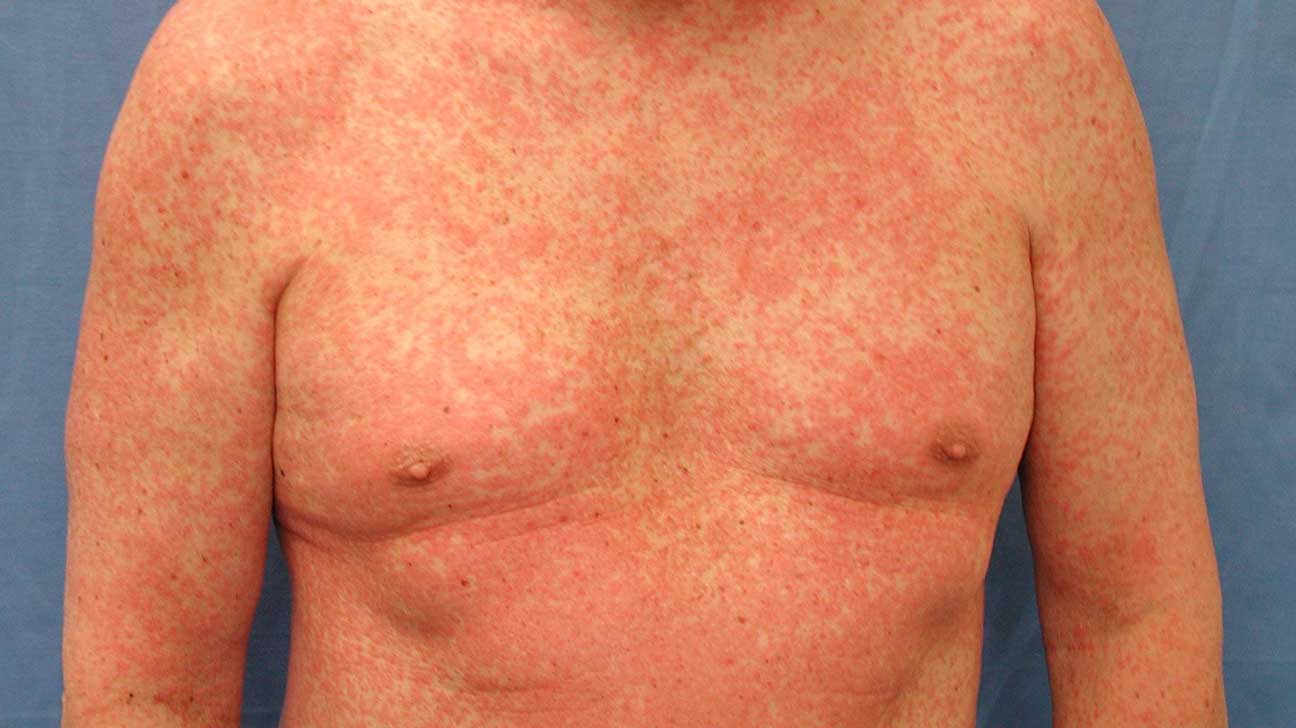Adult rash on chest photo 611
