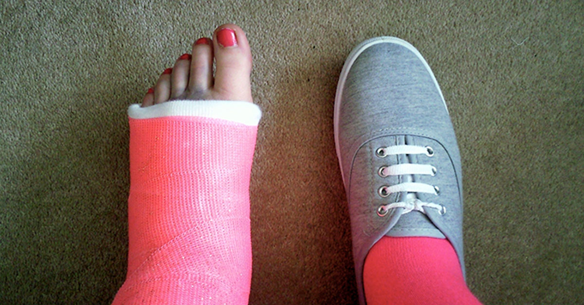 Tips for Walking with a Cast