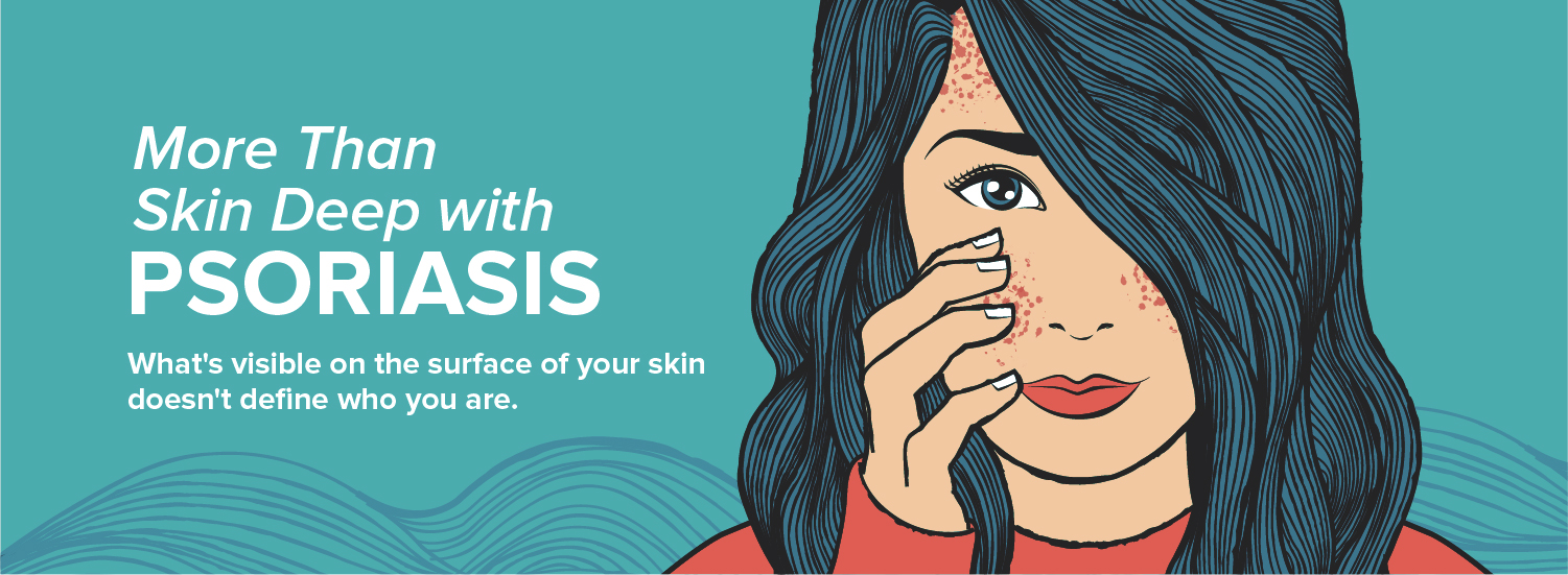 More Than Skin Deep with Psoriasis
