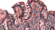 microscope image of Celiac Disease
