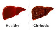 Cirrhosis