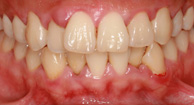 Gum Disease (Gingivitis)