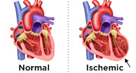 ischemic cardiomyopathy: symptoms, causes, and treatment, Skeleton