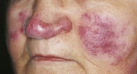 person with lupus rash