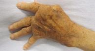deformed hand