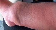 Bone Infection (Osteomyelitis)