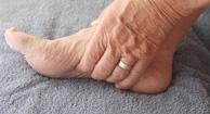 Staph Infection (Staphylococcus Aureus) Symptoms ...