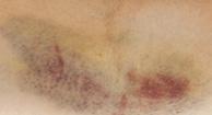 Christmas Disease (Hemophilia B)