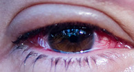 What Causes Conjunctivitis? 4 possible conditions