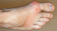 Gout Overview