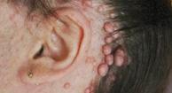 Von Recklinghausen's Disease (Neurofibromatosis 1)