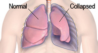 Collapse of the Lung (Pneumothorax)